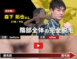 メンズ 尻毛 脱毛 【公式】男性(メンズ)向けヒゲ脱毛・カラダ脱毛|MEN'S TBC